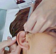 puntos auriculoterapia alopecia